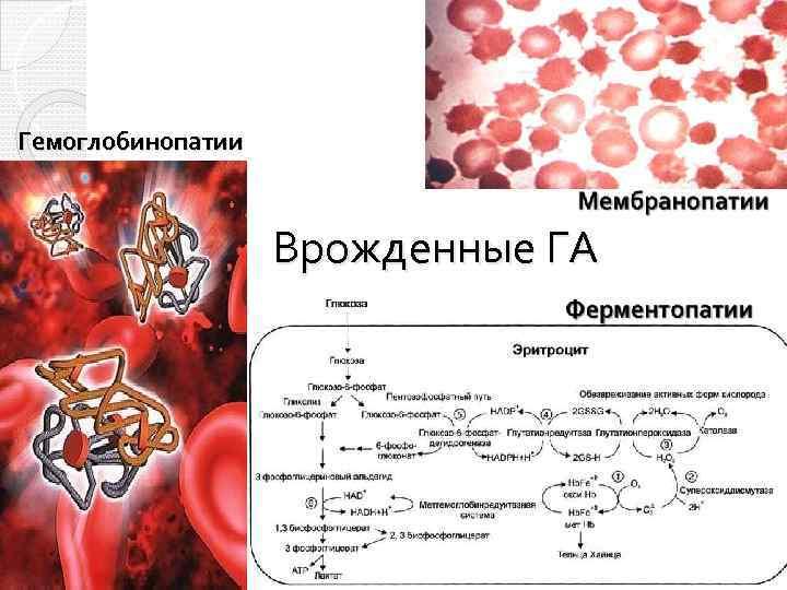 Гемоглобинопатии Врожденные ГА