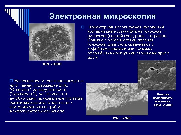 Электронная микроскопия o Характерная, используемая как важный критерий диагностики форма гонококка - диплококк (парный