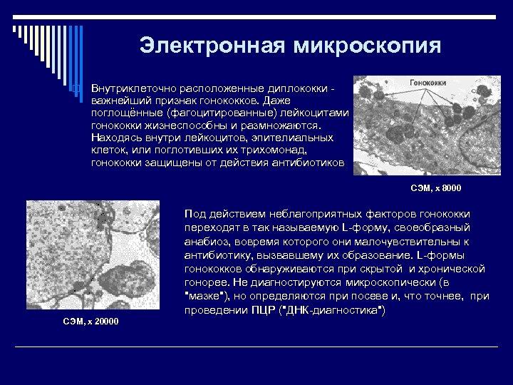 Электронная микроскопия o Внутриклеточно расположенные диплококки - важнейший признак гонококков. Даже поглощённые (фагоцитированные) лейкоцитами