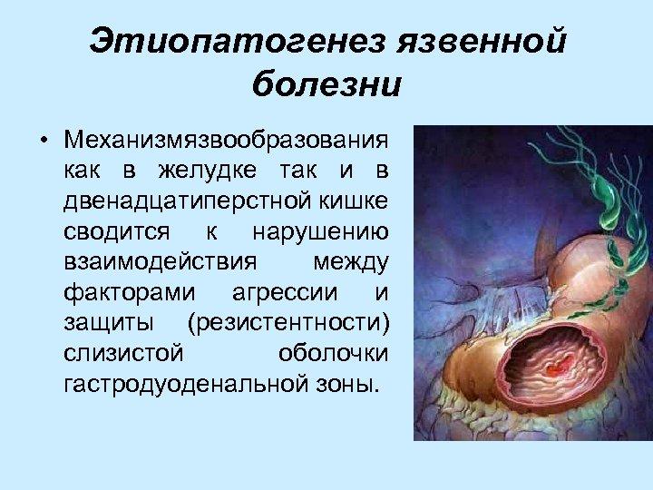 Этиопатогенез язвенной болезни • Механизм язвообразования как в желудке так и в двенадцатиперстной кишке