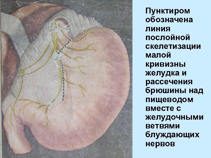 Пунктиром обозначена линия послойной скелетизации малой кривизны желудка и рассечения брюшины над пищеводом вместе