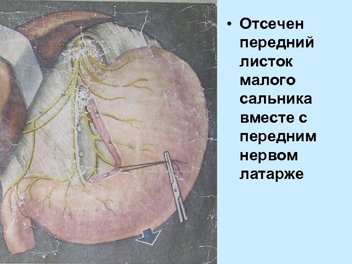 • Отсечен передний листок малого сальника вместе с передним нервом латарже
