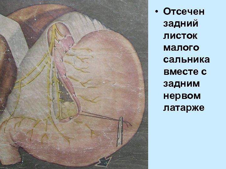 • Отсечен задний листок малого сальника вместе с задним нервом латарже
