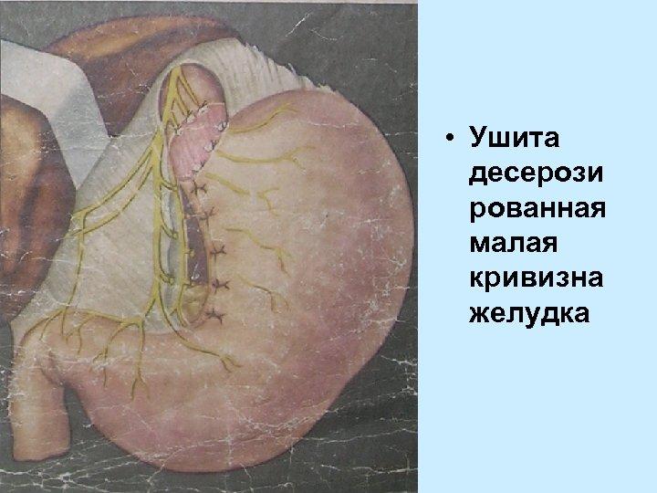 • Ушита десерози рованная малая кривизна желудка