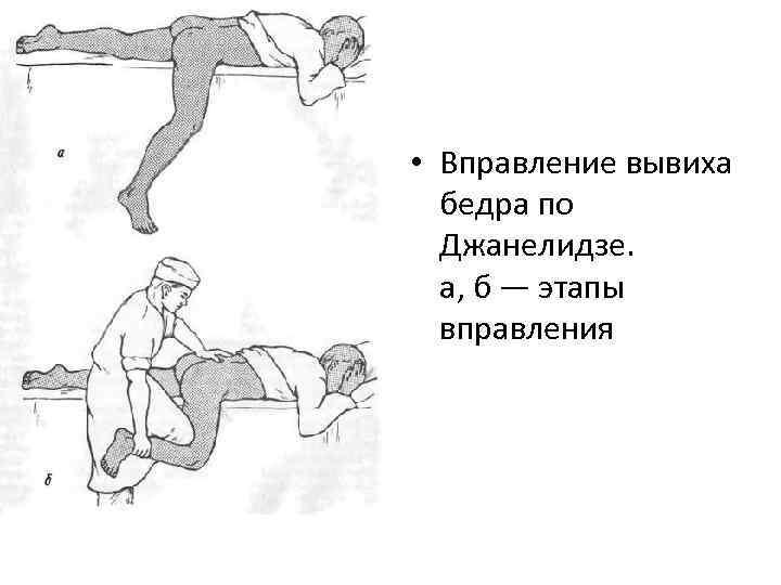 • Вправление вывиха бедра по Джанелидзе. а, б — этапы вправления