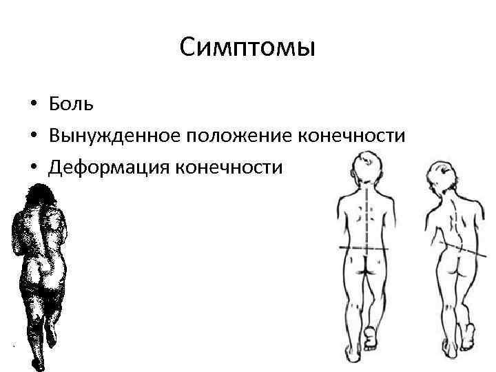 Симптомы • Боль • Вынужденное положение конечности • Деформация конечности