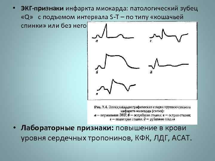 • ЭКГ-признаки инфаркта миокарда: патологический зубец «Q» с подъемом интервала S-Т – по