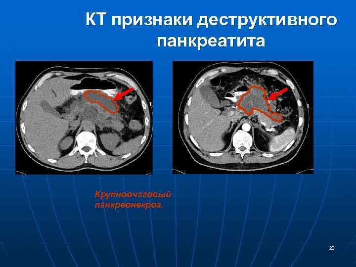 КТ признаки деструктивного панкреатита Крупноочаговый панкреонекроз. 20