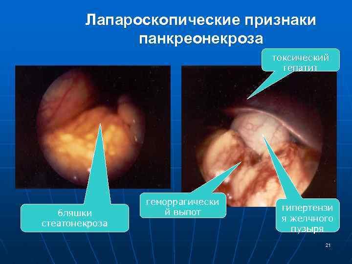 Лапароскопические признаки панкреонекроза токсический гепатит бляшки стеатонекроза геморрагически й выпот гипертензи я желчного пузыря