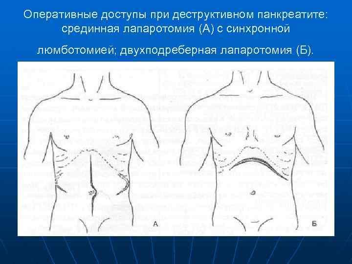 Оперативные доступы при деструктивном панкреатите: срединная лапаротомия (А) с синхронной люмботомией; двухподреберная лапаротомия (Б).
