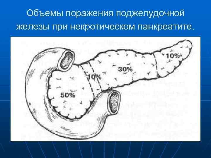 Объемы поражения поджелудочной железы при некротическом панкреатите.