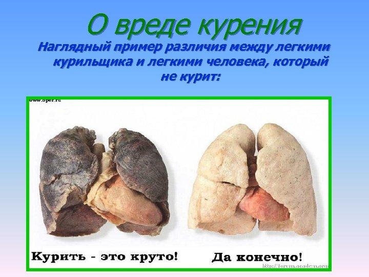 О вреде курения Наглядный пример различия между легкими курильщика и легкими человека, который не