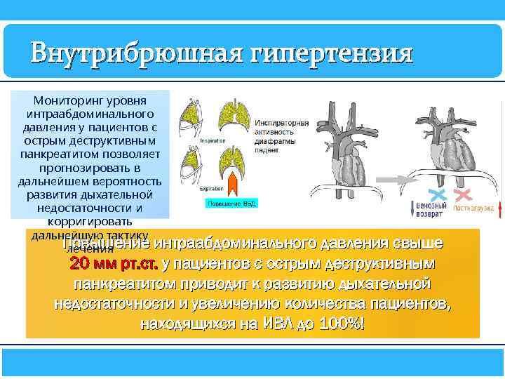 Внутрибрюшная гипертензия Мониторинг уровня интраабдоминального давления у пациентов с острым деструктивным панкреатитом позволяет прогнозировать