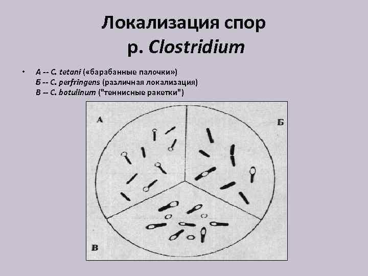 Локализация спор р. Clostridium • А -- C. tetani ( «барабанные палочки» ) Б