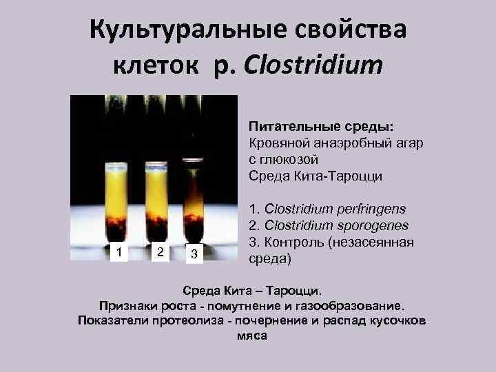 Культуральные свойства клеток р. Clostridium Питательные среды: Кровяной анаэробный агар с глюкозой Среда Кита-Тароцци