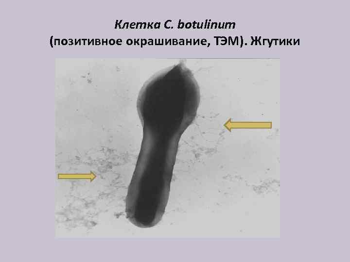 Клетка C. botulinum (позитивное окрашивание, ТЭМ). Жгутики