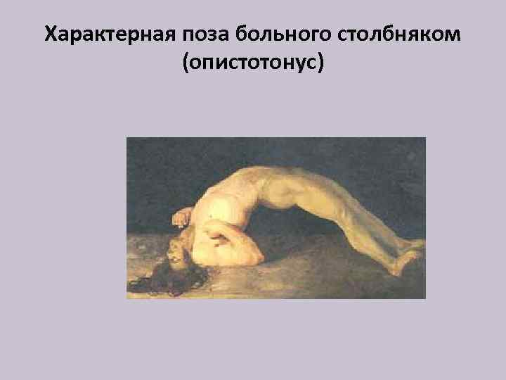 Характерная поза больного столбняком (опистотонус)