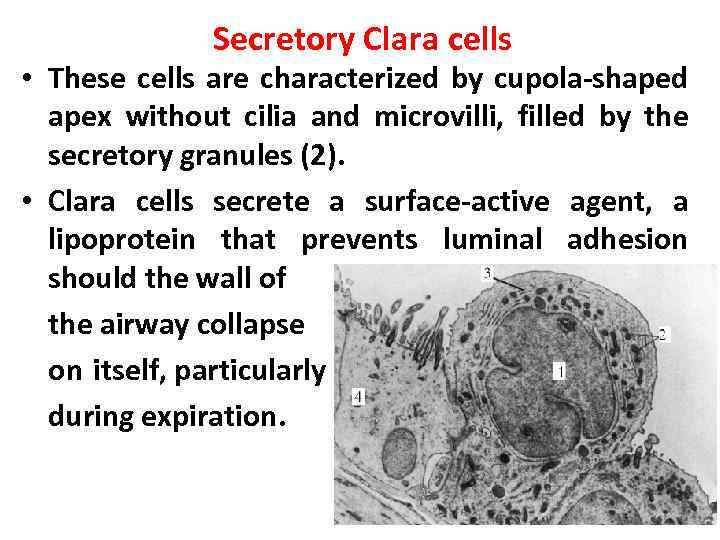 Secretory Clara cells • These cells are characterized by cupola-shaped apex without cilia and