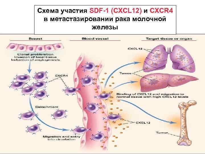 Схема участия SDF-1 (CXCL 12) и CXCR 4 в метастазировании рака молочной железы