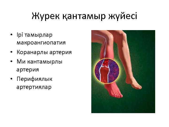 Журек қантамыр жүйесі • Ірі тамырлар макроангиопатия • Коранарлы артерия • Ми кантамырлы артерия
