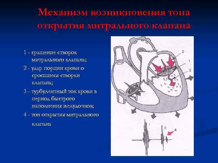 Механизм возникновения тона открытия митрального клапана 1 - сращение створок митрального клапана; 2 -