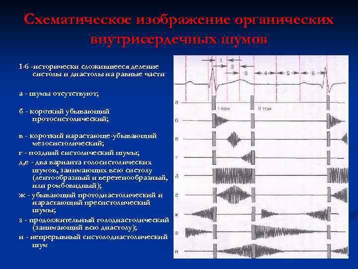 Схематическое изображение органических внутрисердечных шумов 1 -6 -исторически сложившееся деление систолы и диастолы на