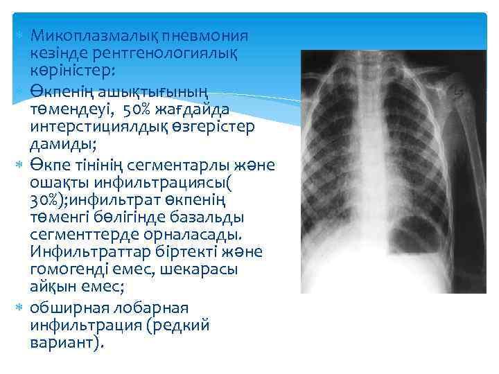 Микоплазмалық пневмония кезінде рентгенологиялық көріністер: Өкпенің ашықтығының төмендеуі, 50% жағдайда интерстициялдық өзгерістер дамиды;