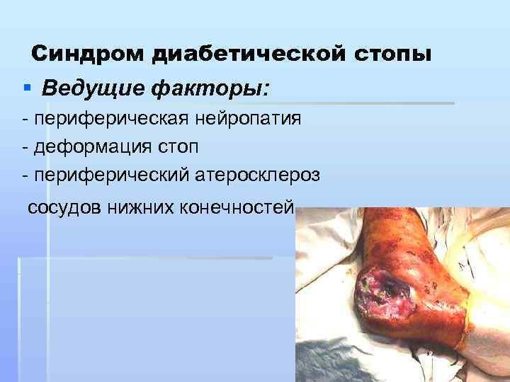 Синдром диабетической стопы § Ведущие факторы: периферическая нейропатия деформация стоп периферический атеросклероз сосудов нижних