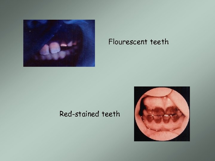 Flourescent teeth Red-stained teeth