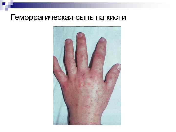 Геморрагическая сыпь на кисти