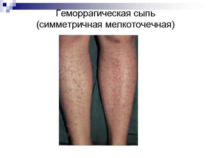 Геморрагическая сыпь (симметричная мелкоточечная)