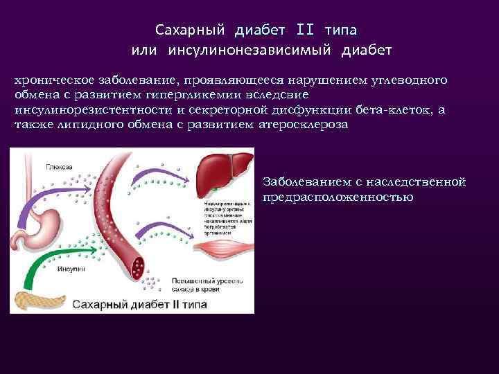 Сахарный диабет 2 типа уши