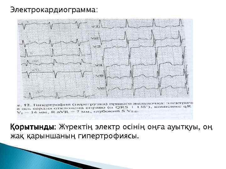 Электрокардиограмма: Қорытынды: Жүректің электр осінің оңға ауытқуы, оң жақ қарыншаның гипертрофиясы.
