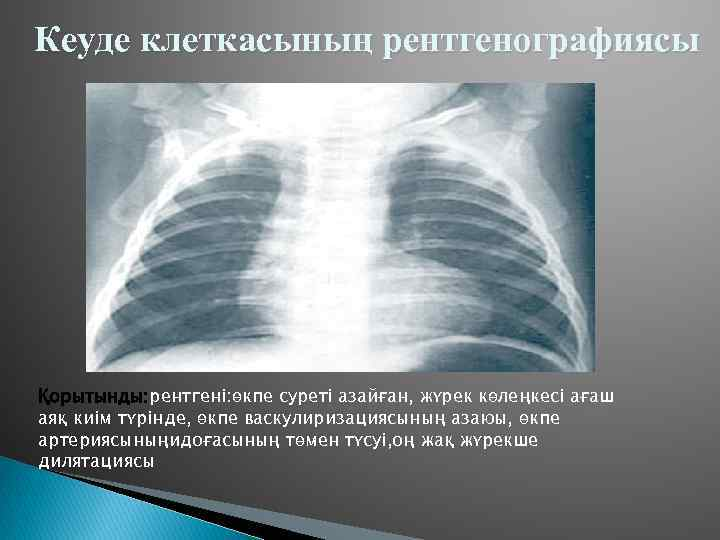 Кеуде клеткасының рентгенографиясы Қорытынды: рентгені: өкпе суреті азайған, жүрек көлеңкесі ағаш аяқ киім түрінде,