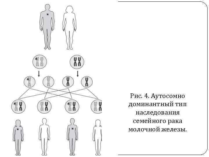 Рис. 4. Аутосомно доминантный тип наследования семейного рака молочной железы.