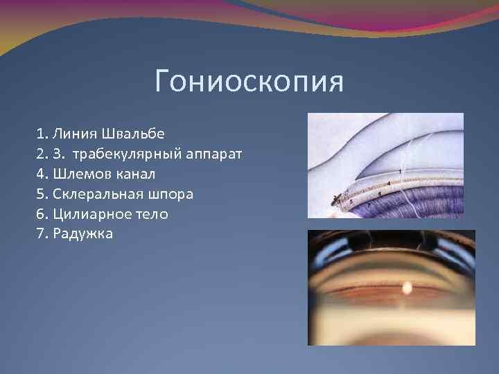 Гониоскопия 1. Линия Швальбе 2. 3. трабекулярный аппарат 4. Шлемов канал 5. Склеральная шпора