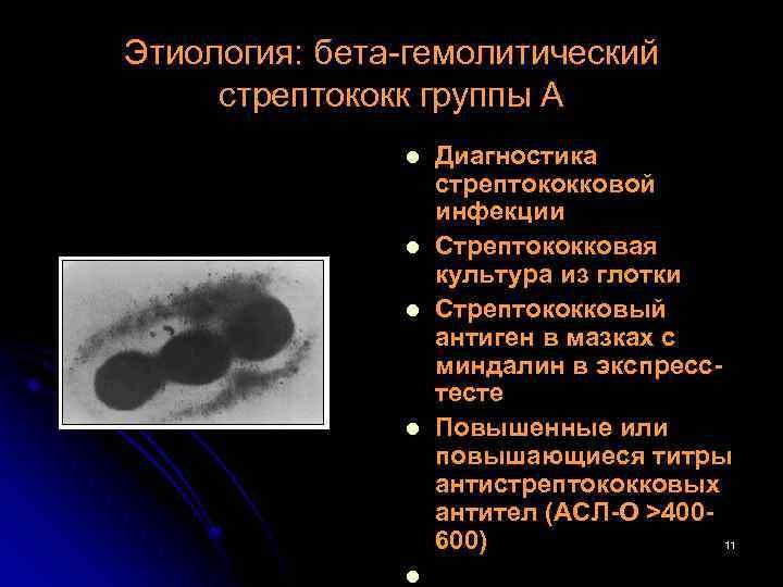 Этиология: бета-гемолитический стрептококк группы А l l l Диагностика стрептококковой инфекции Стрептококковая культура из