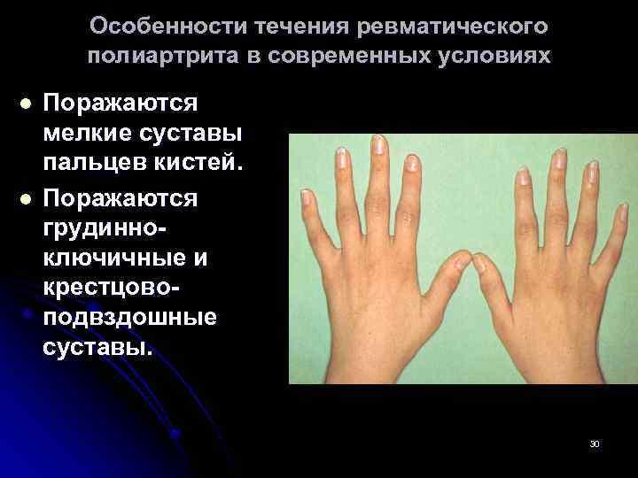 Особенности течения ревматического полиартрита в современных условиях l l Поражаются мелкие суставы пальцев кистей.