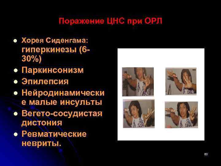 Поражение ЦНС при ОРЛ l l l Хорея Сиденгама: гиперкинезы (630%) Паркинсонизм Эпилепсия Нейродинамически