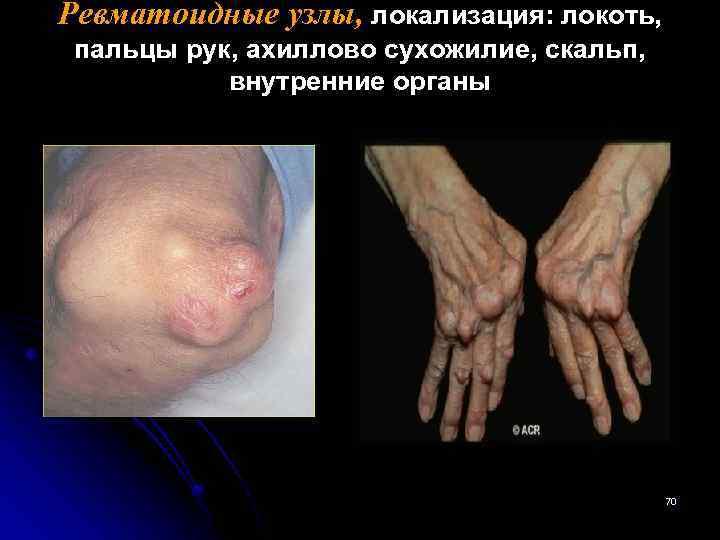 Ревматоидные узлы, локализация: локоть, пальцы рук, ахиллово сухожилие, скальп, внутренние органы 70