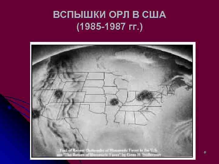 ВСПЫШКИ ОРЛ В США (1985 -1987 гг. ) 8