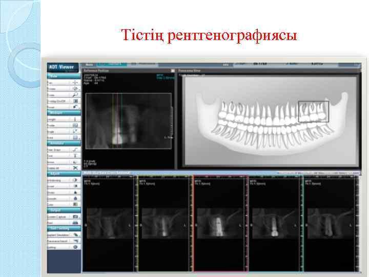 Тістің рентгенографиясы