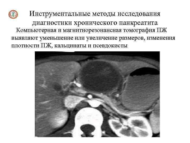 Инструментальные методы исследования диагностики хронического панкреатита Компьютерная и магнитнорезонансная томография ПЖ выявляют уменьшение или