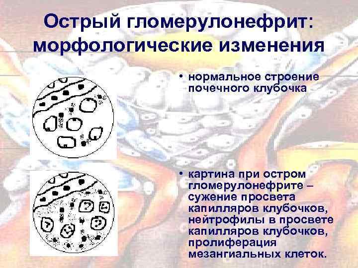 Острый гломерулонефрит: морфологические изменения • нормальное строение почечного клубочка • картина при остром гломерулонефрите