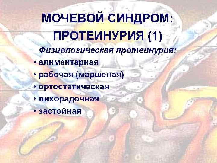 МОЧЕВОЙ СИНДРОМ: ПРОТЕИНУРИЯ (1) Физиологическая протеинурия: • алиментарная • рабочая (маршевая) • ортостатическая •