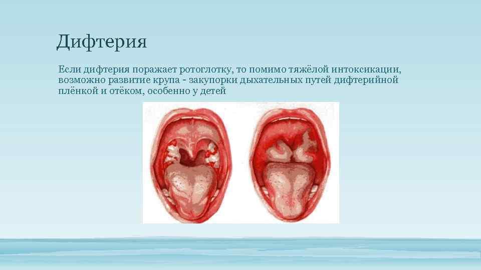 Дифтерия Если дифтерия поражает ротоглотку, то помимо тяжёлой интоксикации, возможно развитие крупа закупорки дыхательных