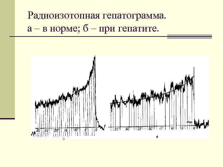 Радиоизотопная гепатограмма. а – в норме; б – при гепатите.