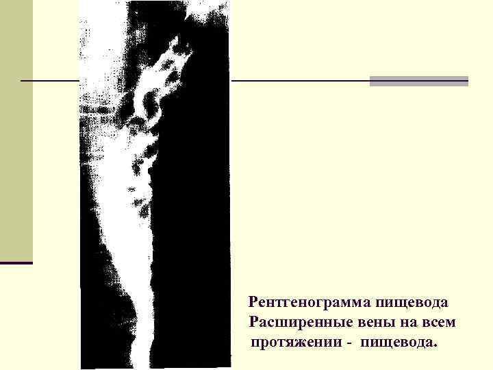 Рентгенограмма пищевода Расширенные вены на всем протяжении - пищевода.