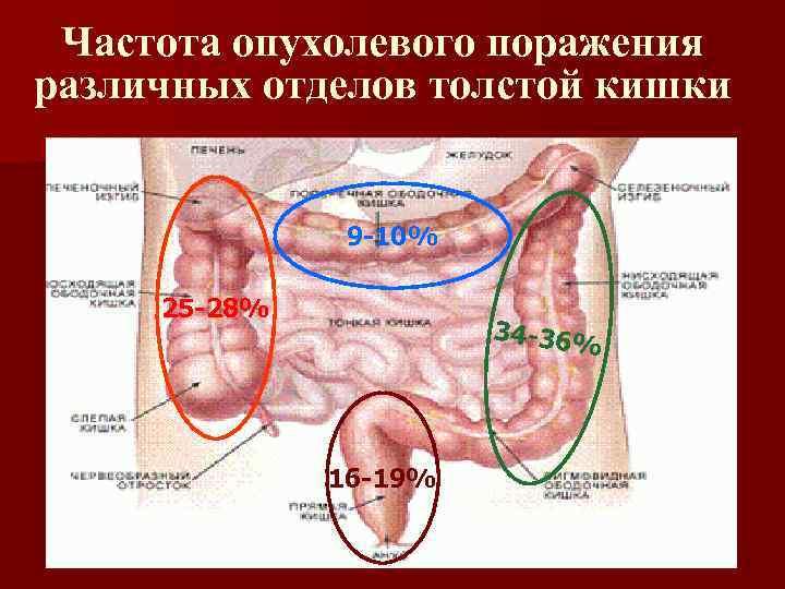 Частота опухолевого поражения различных отделов толстой кишки 9 -10% 25 -28% 34 -36% 16