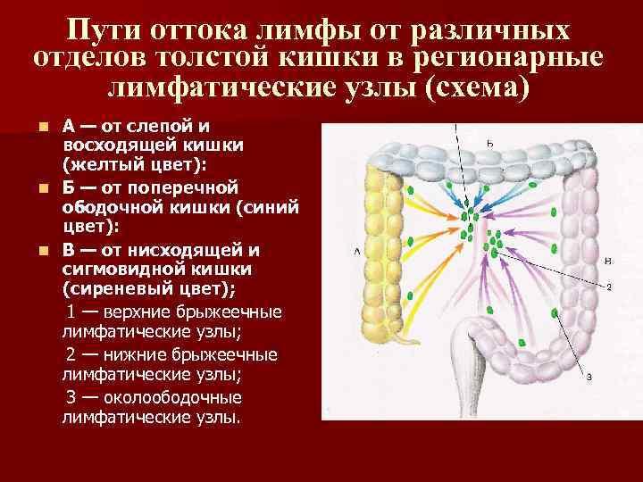 Пути оттока лимфы от различных отделов толстой кишки в регионарные лимфатические узлы (схема) А